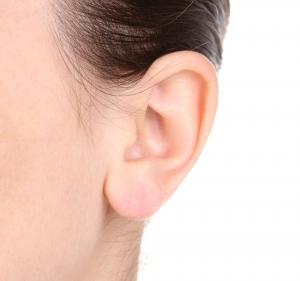 L'otoplastie pour corriger les oreilles décollées