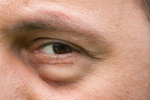 Chirurgie des paupières : un effet spectaculaire et durable