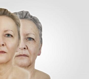 Plis d'amertume : acide hyaluronique et fils tenseurs pour redensifier et rehausser le bas du visage
