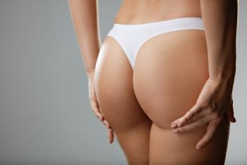 La chirurgie des fesses, une spécialité en pleine évolution