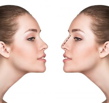 Corriger son nez : chirurgie ou médecine esthétique ?