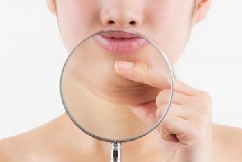 Comment réduire un double menton ?